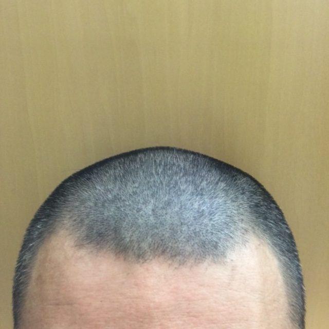 育毛サプリメント