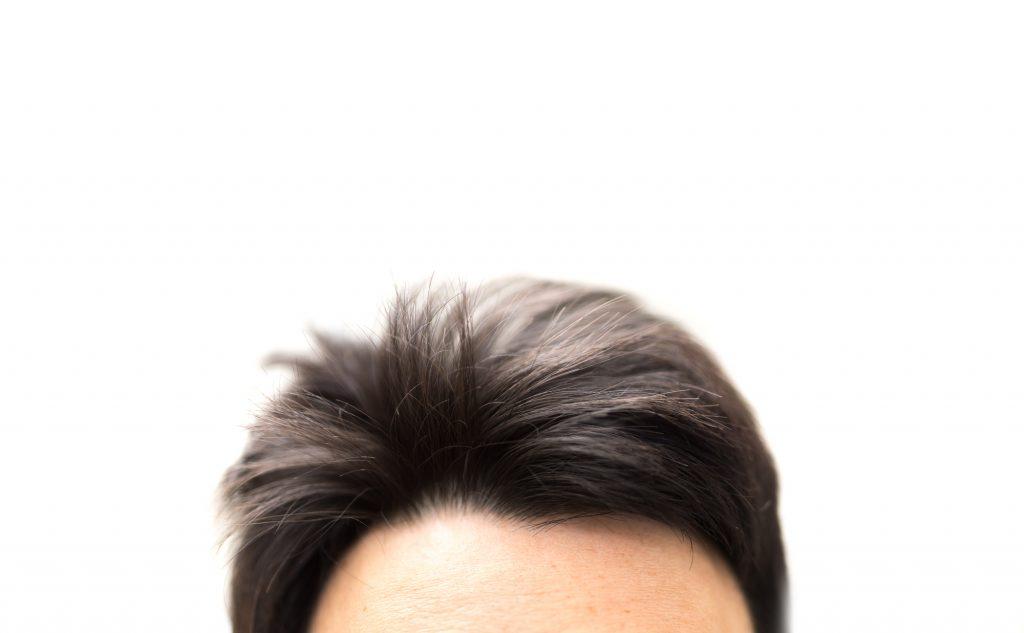 薄毛対策に植毛をする
