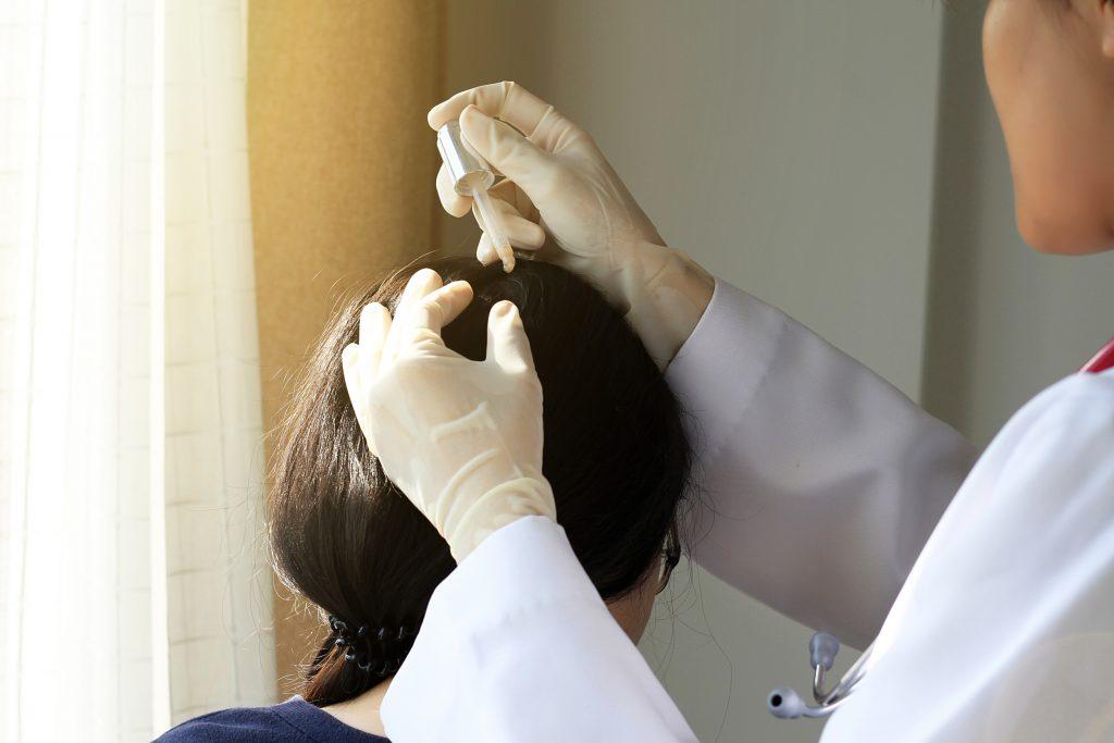 薄毛の治療を行う