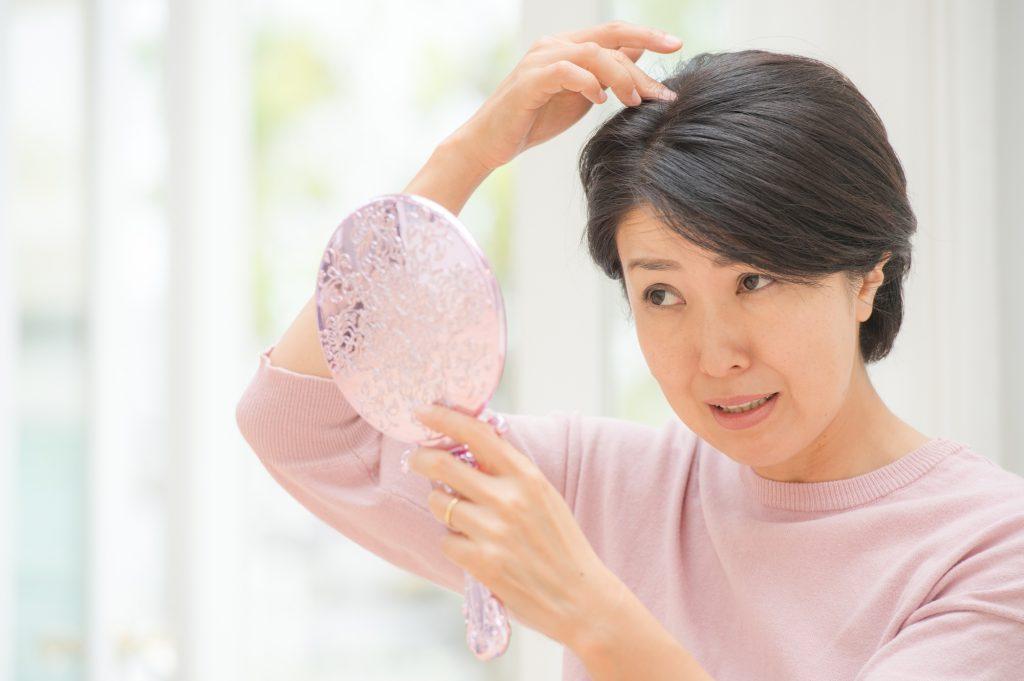つむじの薄毛に悩む女性